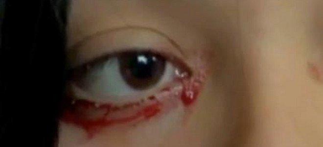 Σοκ: Αίμα αντί για δάκρυα εκκρίνει 20χρονη στη Χιλή