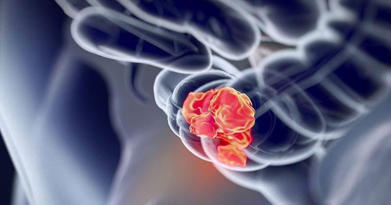 Περισσότερο φως στο γενετικό υπόβαθρο του καρκίνου του παχέος εντέρου
