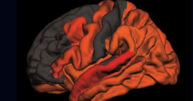 Πρώιμη ένδειξη για Αλτσχάιμερ μπορεί να είναι ο λιγότερο βαθύς νυχτερινός ύπνος