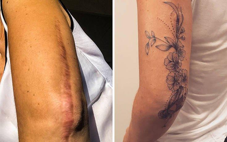 Σημάδια μετατράπηκαν σε εντυπωσιακά τατουάζ