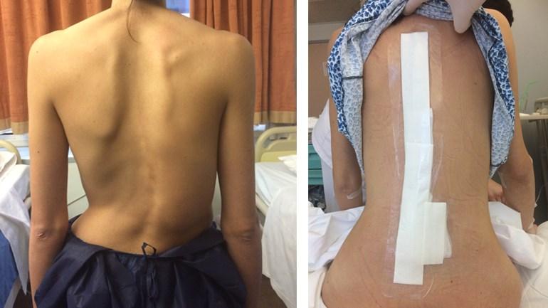 Νεαρή ασθενής 27 ετών με σκολίωση η οποία αντιμετωπίστηκε με ρομποτική χειρουργική της σπονδυλικής στήλης από τον Δρ. Λυκίσσα. Εικόνα πριν και εικόνα 24 ώρες μετά το χειρουργείο.