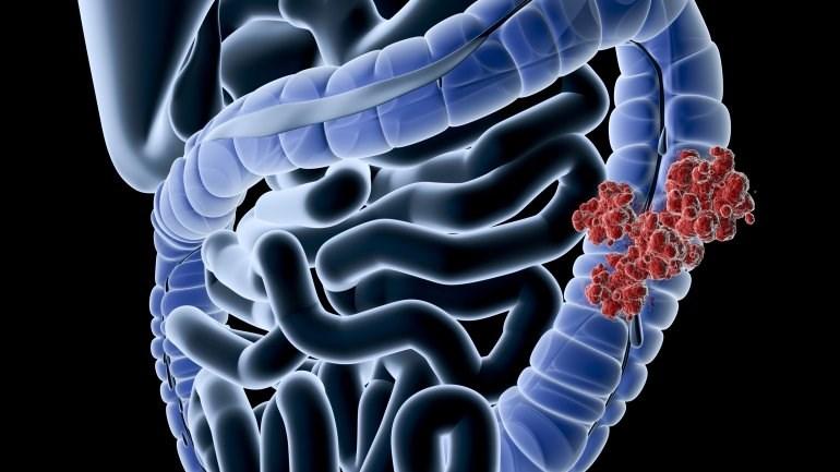 Γιατί τα πολλά λιπαρά αυξάνουν την πιθανότητα για καρκίνο του παχέος εντέρου