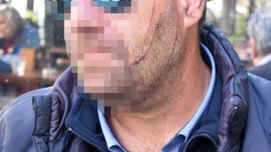 """""""Θέλεις να πεθάνεις σήμερα;"""" - Η μαρτυρία του Λαρισαίου οδηγού του αστικού για την επίθεση που δέχθηκε (φωτό)"""