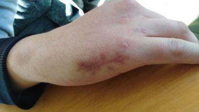 Βόλος: Νεαρός ζούσε τρεις μήνες με ξεχασμένο γυαλί στο χέρι του